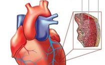 Как снять приступ аритмии сердца в домашних условиях: первая помощь, симптомы и лечение