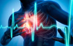 Как лечить инфаркт миокарда в домашних условиях народными средствами