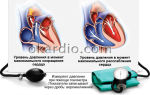 Как повысить сердечное давление: таблетки