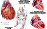 Высокое нижнее артериальное давление: лечение