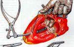 Приобретенный порок сердца: что это такое, причины возникновения у взрослых, симптомы и лечение