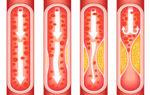 Что такое атеросклероз и как он влияет на работу сердечно-сосудистой системы
