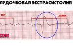 Дополнительная хорда в сердце у ребенка: что это такое, опасно ли это