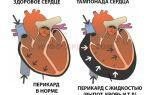 Острый трансмуральный инфаркт передней стенки миокарда на экг: что это такое, прогноз