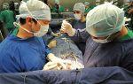 После стентирования на сердце могут быть боли в грудном отделе, почему