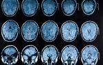 Магнитно резонансная томография: делают ли мрт сердца, что она показывает?