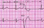 Асистолия желудочков сердца: что это такое, лечение