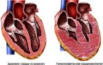 Кардиопатия сердца с нарушением ритма у взрослых: что это такое, симптомы и лечение