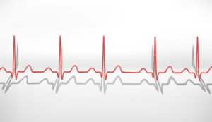 Что делать при брадикардии в домашних условиях: как повысить пульс, первая помощь