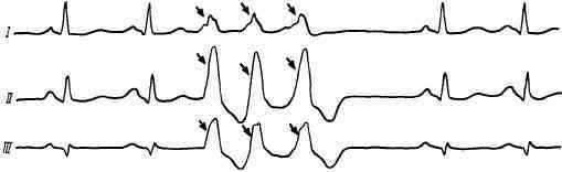 Экстрасистолия по типу бигеминии: желудочковая, частая, лечение экстрасистол