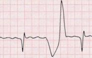 Экстрасистолия при остеохондрозе: связь двух заболеваний, особенности течения патологии грудного отдела позвоночника