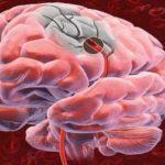 Генерализованный атеросклероз: что это такое, особенности патологии неуточненного характера