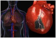 Постинфарктный кардиосклероз: что это такое, причина смерти