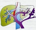 Портальная гипертензия: что это такое, лечение