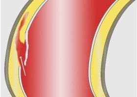 Расслаивающая аневризма аорты: симптомы, диагностика и лечение