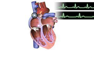 Синусовая брадикардия сердца: что это такое, симптомы и лечение, экг
