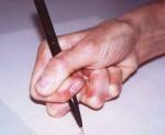 Идиопатическая торсионная дистония, кривошея: что это, симптомы