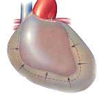 Шумы в сердце у взрослого: трение перикарда, причины