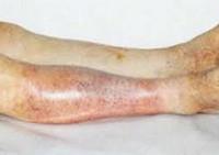 Атеросклероз сосудов нижних конечностей: симптомы и лечение, причины, классификация, диагностика, профилактика, прогноз, какой врач лечит