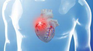 Мелкоочаговый диффузный кардиосклероз: что это такое, причина смерти