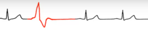 На ЭКГ экстрасистолы: признаки желудочковой и наджелудочковой аритмии